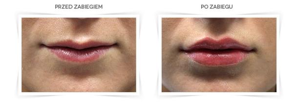 Znalezione obrazy dla zapytania jak pielegnowac usta po kwasie hialuronowym