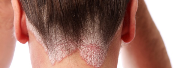 Łuszczyca i sposoby jej leczenia