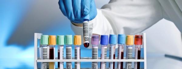 Jak zdiagnozować zespół metaboliczny?