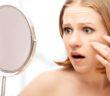 Jak pielęgnować skórę trądzikową i uniknąć blizn?