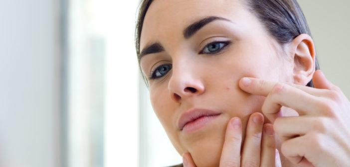 Cera tłusta - jak oczyszczać twarz, aby uniknąć trądziku